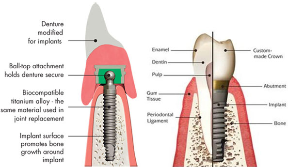 diagram of dental implants lynchburg virginia