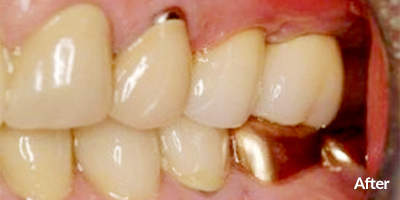 Two Dental Implants Upper Left
